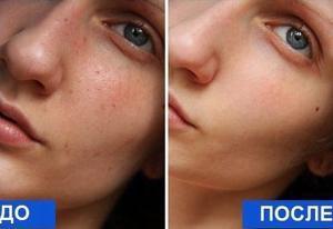 Очищающая и омолаживающая маска для лица